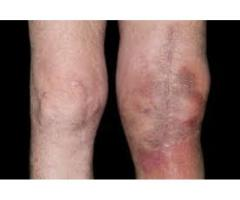 What are the Cons of Knee + Joint Renew?
